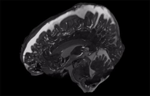 在新视频中了解大脑如何随着每次心跳而摆动
